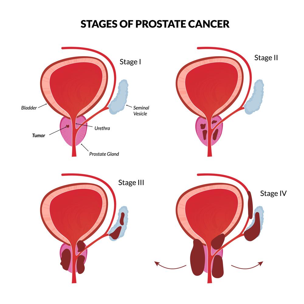 prostate cancer medicentresprostate cancer diagram